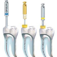Endodoncia KOMET